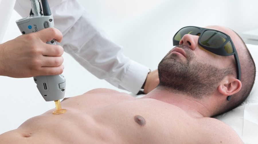 depilacion laser hombres en madrid